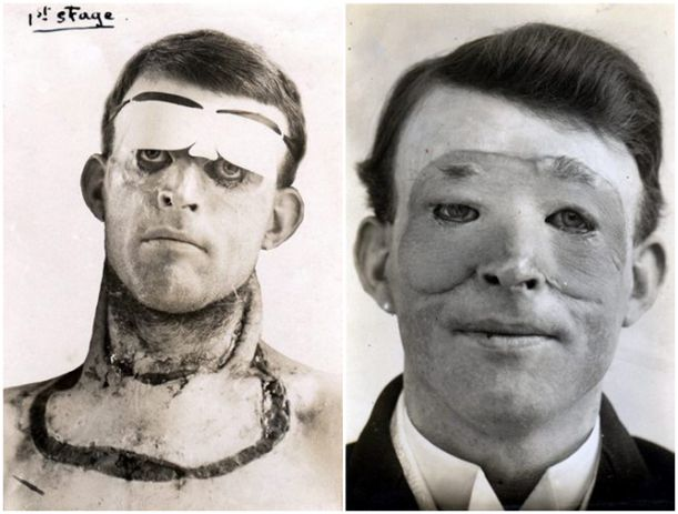 First Facial Transplant