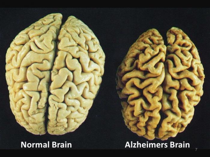 Alzheimerova choroba způsobuje degenerativní onemocnění mozku. Díky ní staří lidé přichází o paměť a kognitivní schopnosti.