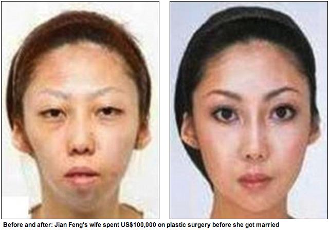 Podle mnoha webů, které se fotek chytly, utratila tahle žena za plastickou chirurgii předtím, než se vdala, 100 000 dolarů.