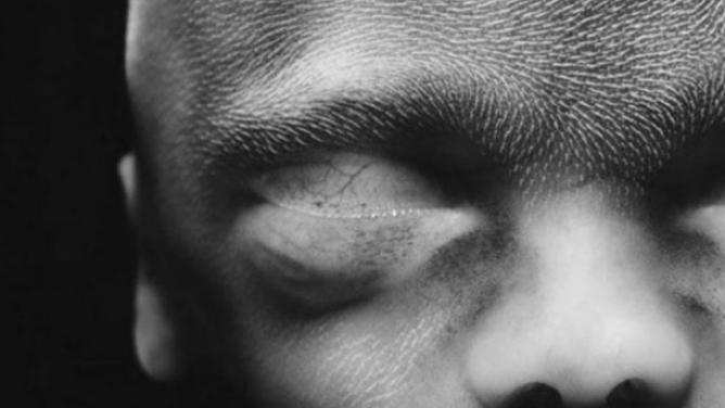 Vlasy, chlupy a dalších 12druhů lidského osrstění