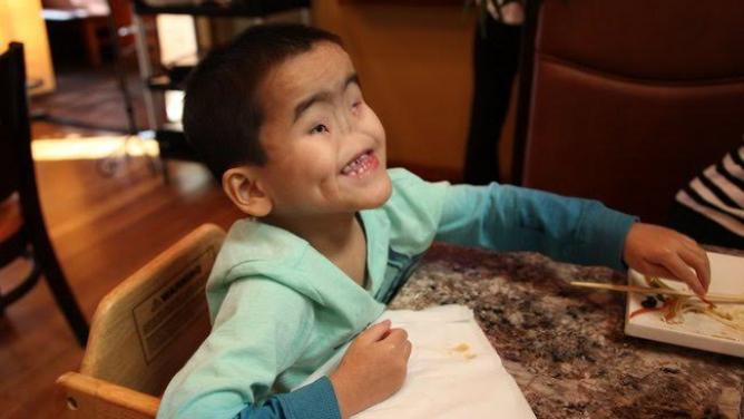 Opuštěný chlapec zČíny se narodil slepý a bez nosu. Najde rodinu, která ho bude milovat?