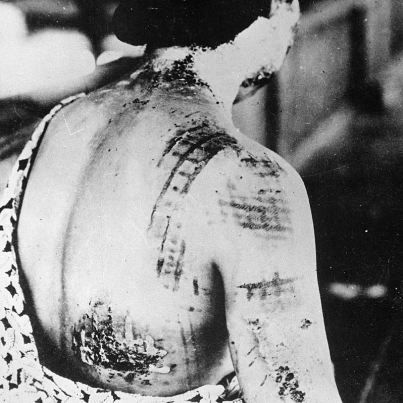 Vypálené jizvy po oblečení, které na sobě měla žena v době výbuchu.