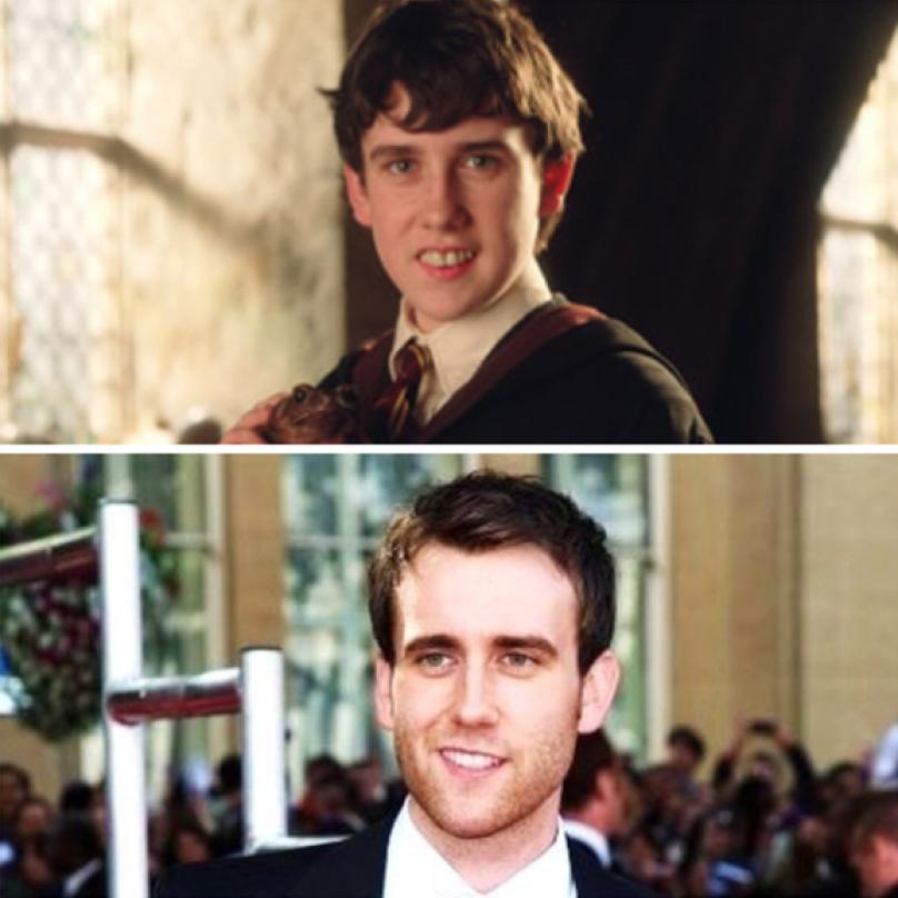 Matthew Lewis. Neville Longbottom z Harryho Pottera, pamatujete? Trochu jinej level teď, ve svých 29 letech. I když je nutné podotknout, že kvůli roli Nevilla musel Matthew nosit falešné žluté křivé zuby.