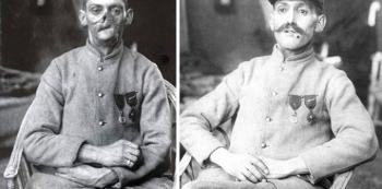 Na první pohled se může zdát, že se jedná o dvě rozličné osoby. Na druhém snímku stejný voják s maskou. Zranění obličeje byla velmi častá, neboť vojáci museli čas od času vystrčit ze zákopu hlavu, aby se rozhlédli.
